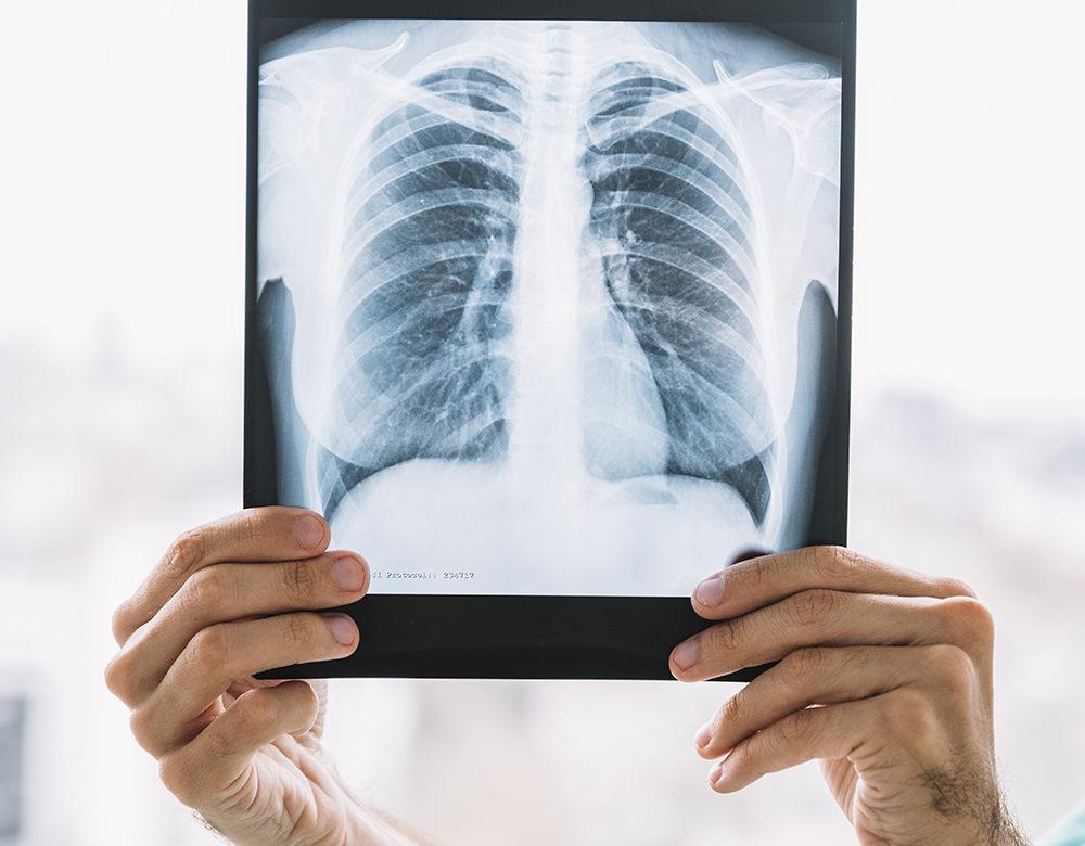 pacjent, respirator, wentylacja mechaniczna, wentylacja inwazyjna, wentylacja nieinwazyjna