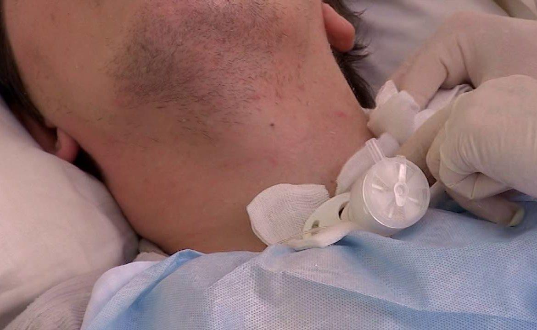 rurka tracheostomijna, kaniula, tracheotomia, opieka, pacjent wentylowany, wentylacja inwazyjna, respirator