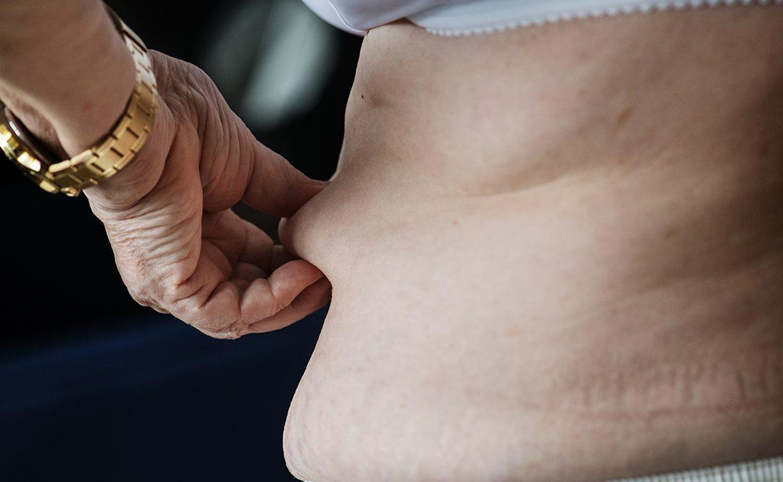 cukrzyca, nadwaga, otyłość, dieta, zdrowy styl życia, pacjent
