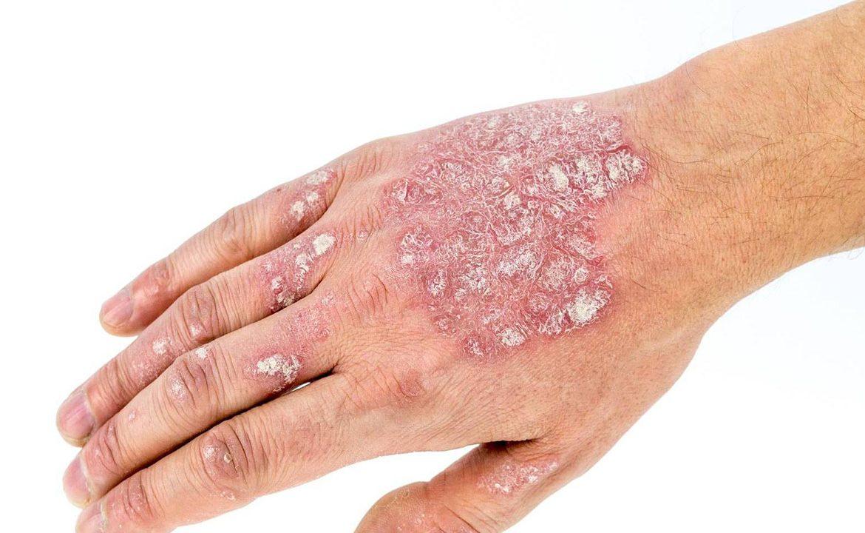 łuszczyca, egzema, program lekowy, leczenie łuszczycy, coroby autoimmunologiczne, choroby skóry