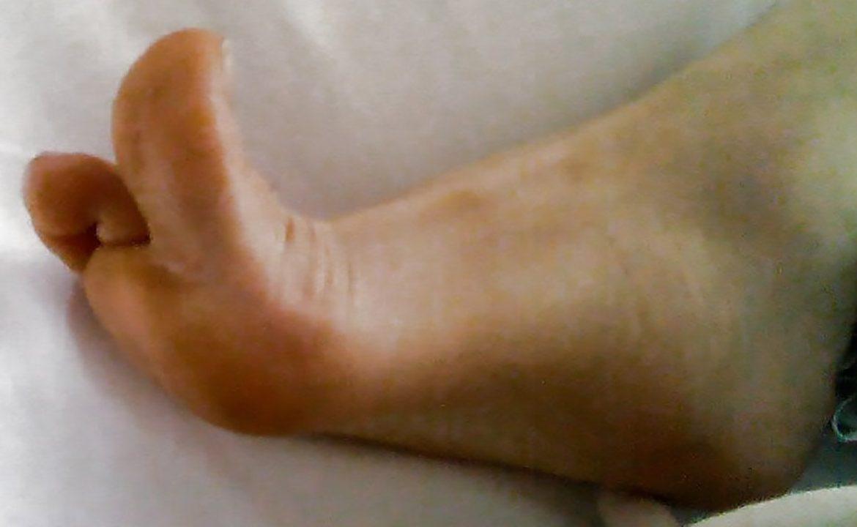 józef Babiński, odruch babińskiego, neurologia, stopa, odruch podeszwowy, pacjent, sm, sla, stwardnienie zanikowe boczne, stwardnienie rozsiane, MPD, mózgrowe porażenie dziecięce